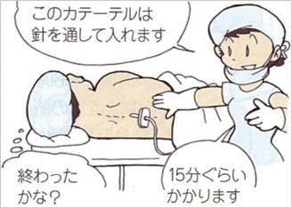 膜 麻酔 硬 外